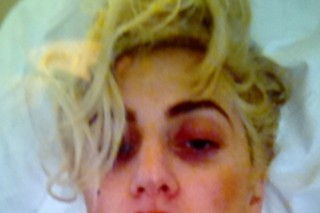 Lady Gaga Has A Black Eye: Morning Mix