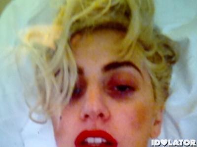 Lady Gaga Has A Black Eye: Morning Mix