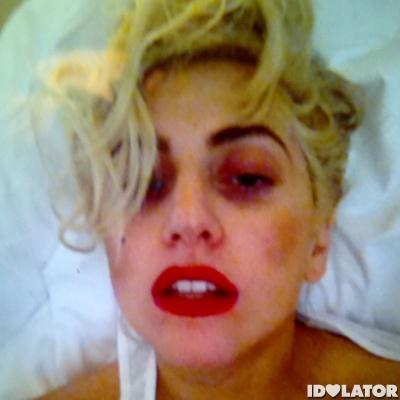 Lady Gaga Black Eye